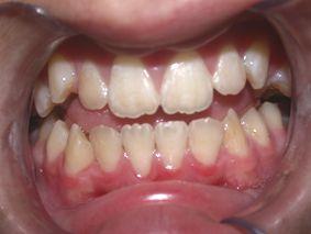 dents-amer-safieddine