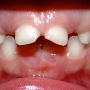 dyslexie-dent-1