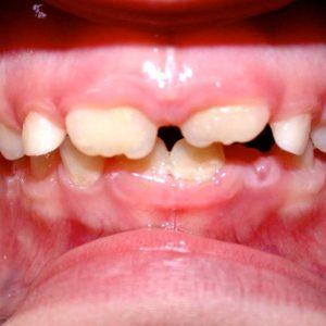dyslexie-dent-2