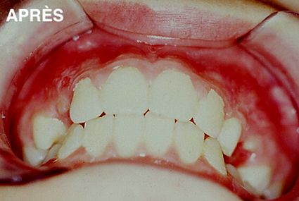 maxillaire-mandibule-10