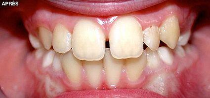 maxillaire-mandibule-2