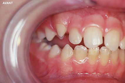 maxillaire-mandibule-3