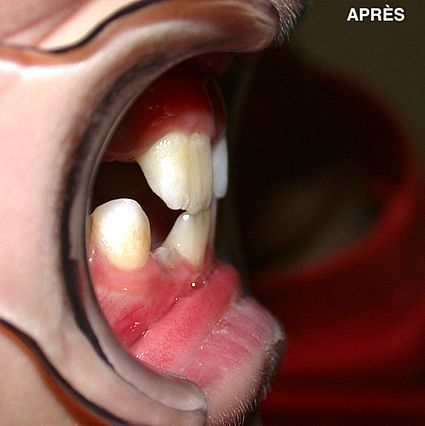 maxillaire-mandibule-6