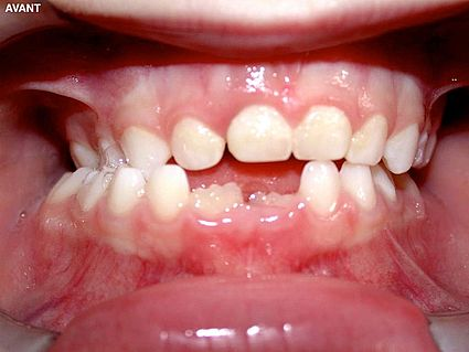 maxillaire-mandibule-7