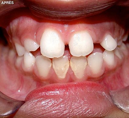 maxillaire-mandibule-8