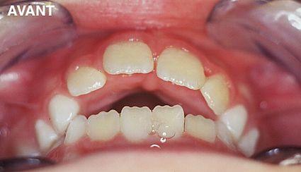 maxillaire-mandibule-9
