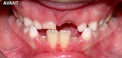 maxillaire-mandibule